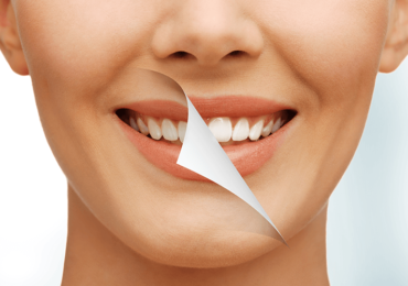 Northampton Dental Group, PC - Teeth Whitening